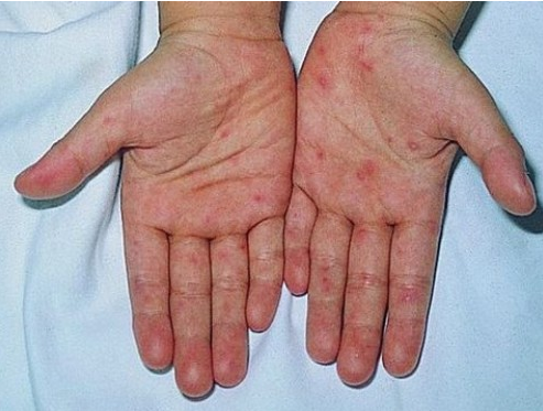 Pictures and Symptoms of Hand Foot and Mouth Disease