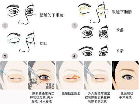 眼睛吸脂安全吗