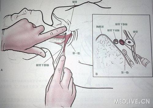 位置较固定,管腔较大,可作为静脉穿刺或长期导管输液部位.